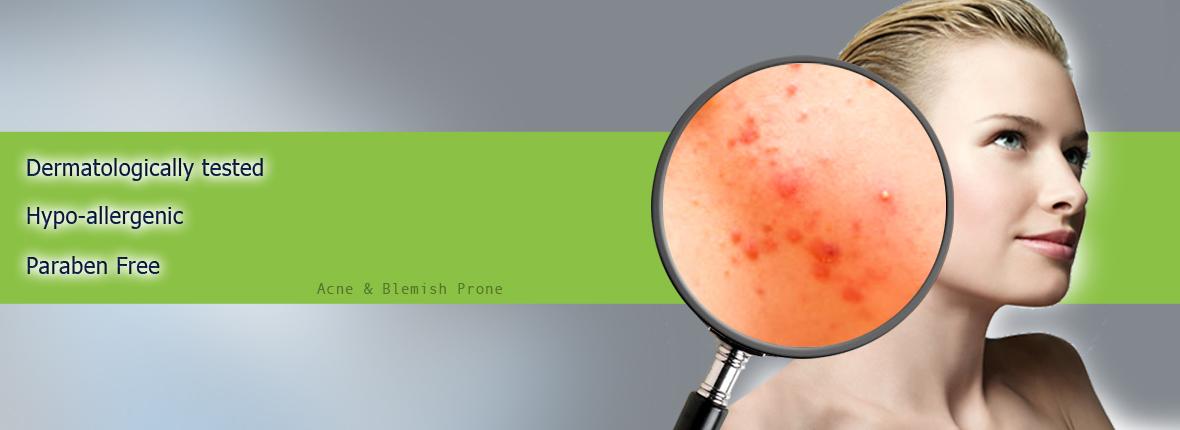 Acne & Blemish Prone Skin